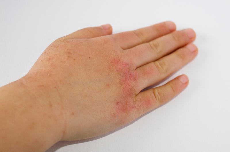 アトピー性皮膚炎とは